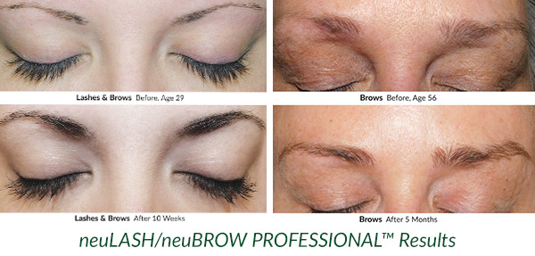 neuLASHPROFESSIONAL™ and neuBROW PROFESSIONAL™ before and after photos